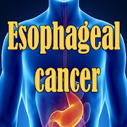 Esophageal Cancer  Latest Version Download